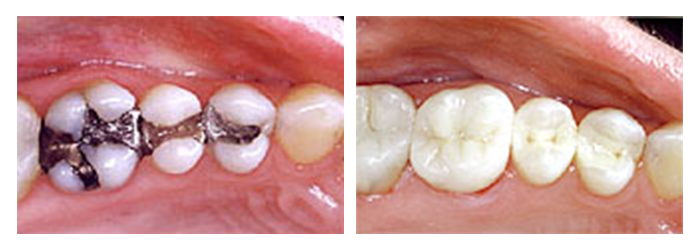 Before and After comparison of amalgam fillings vs. composite fillings